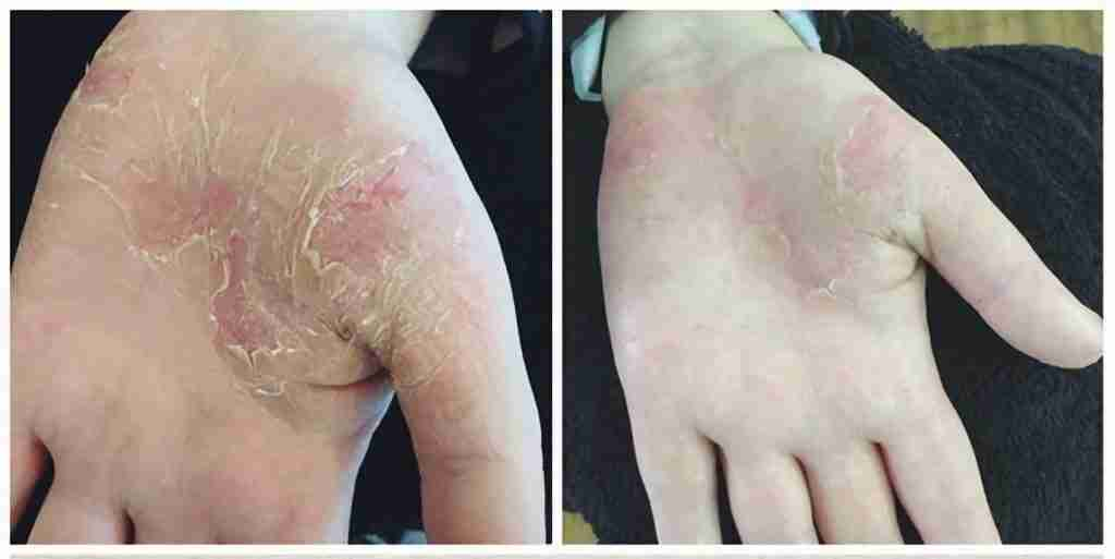 Natural treatment for hands with dermatitis